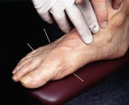 Acupuncture Treatment for Diabetes Complications