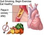 Prevent Heart Disease & Stroke From Diabetes